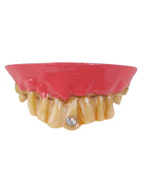 Dentadura con diamante
